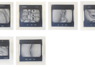 Body Parts, 1978